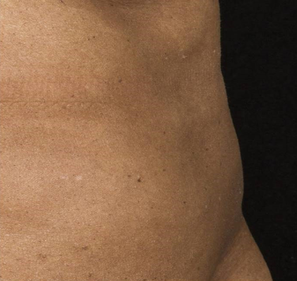 After-Before &amp; After 12 Weeks, 1 Treatment, Flank<br>Weight Loss: -1lbs. Courtesy of B.Katz,MD