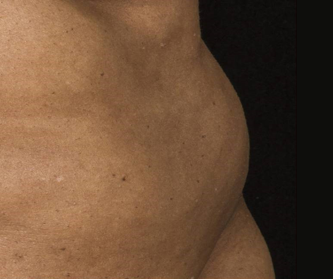 Before-Before &amp; After 12 Weeks, 1 Treatment, Flank<br>Weight Loss: -1lbs. Courtesy of B.Katz,MD