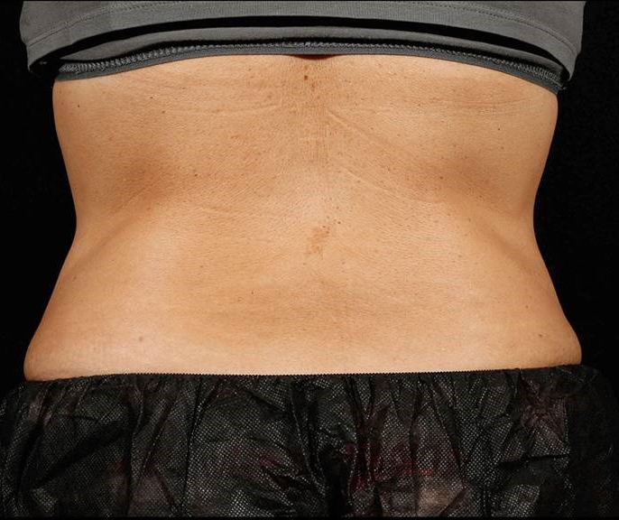 After-Before &amp; After 6 Weeks, 1 Treatment, Flank and Abdomen<br>Weight Change: -2 lbs. Courtesy of S.Doherty,MD