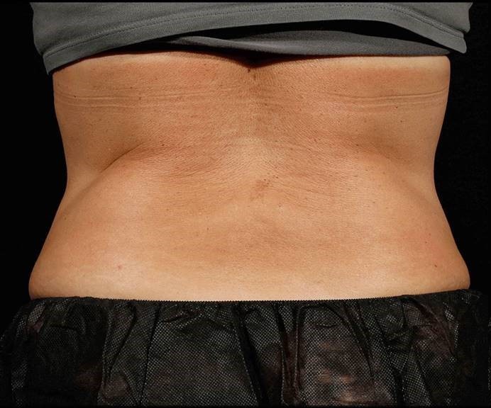 Before-Before &amp; After 6 Weeks, 1 Treatment, Flank and Abdomen<br>Weight Change: -2 lbs. Courtesy of S.Doherty,MD
