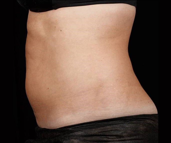 After-Before &amp; After 12 Weeks, 2 Treatment, Flank and Abdomen<br>Weight Change: 0 lbs. Courtesy of S.Doherty,MD