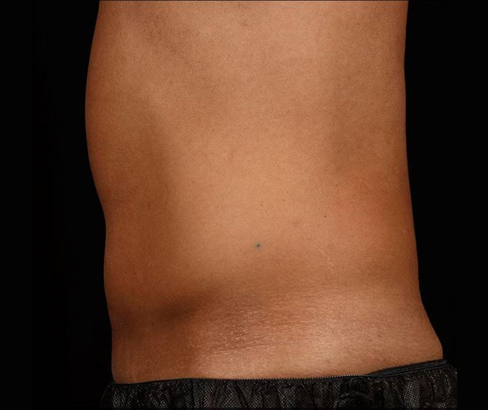 After-Before &amp; After 12 Weeks, 2 Treatment, Flank and Abdomen<br>Weight Change: -6 lbs. Courtesy of S.Doherty,MD