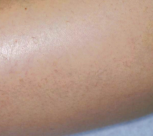 After-HAIR REMOVAL