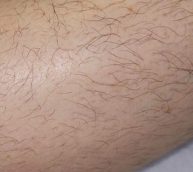 Before-HAIR REMOVAL