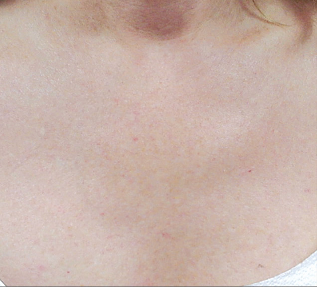 After-IPL-PHOTO REJUVENATION